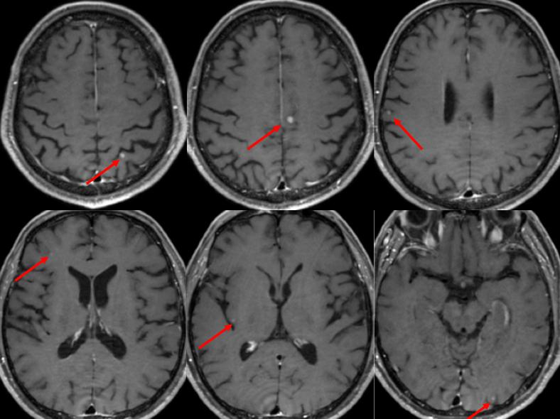 白質脳症 初回の頭部MRI多発転移