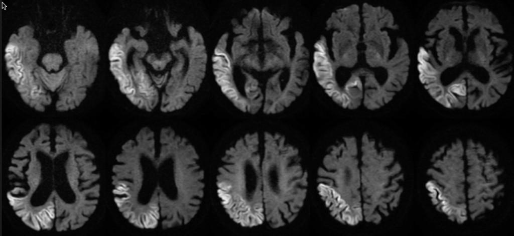 2018:1:15 MRI Diffusion