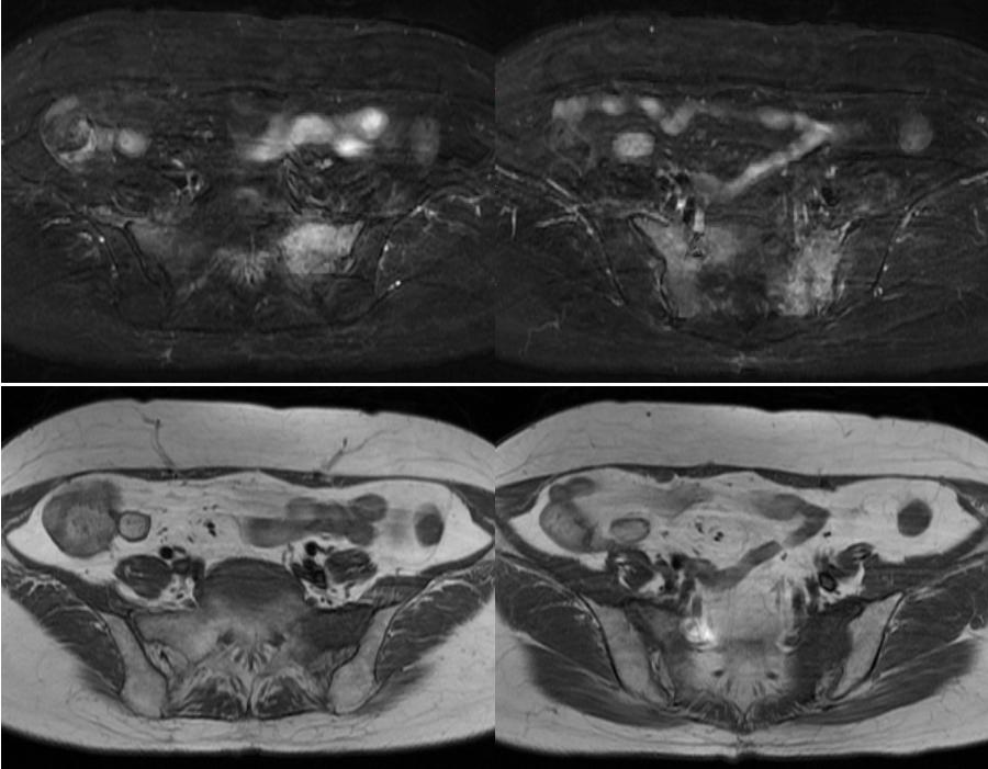脆弱性骨折と臨床診断 66F 5