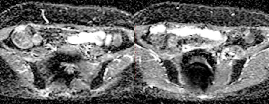 脆弱性骨折と臨床診断 66F 7
