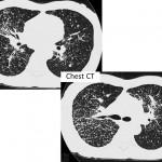 Chest CT