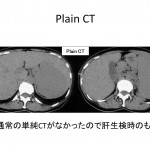 Plain CT during biopsy