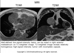 Type A thymoma 62M MRI 1
