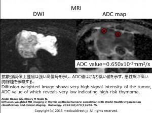 Type B3 Thymoma 69M MRI 2.6