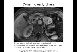 MRI dynamic early 1