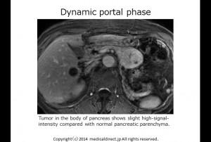 MRI dynamic portal 1