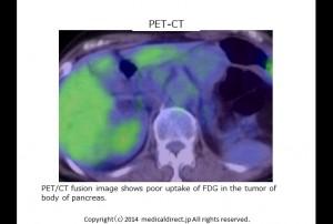PET CT1