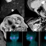 71-year-old woman with right submandibular mass