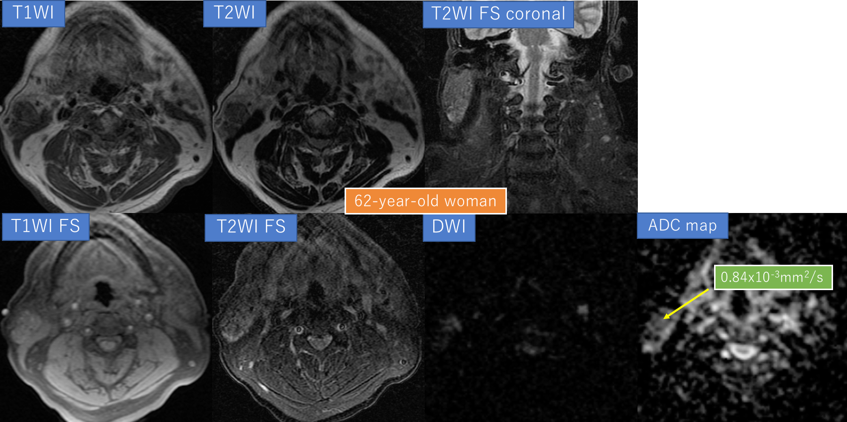 例題5. 62-year-old woman with right parotid gland tumor