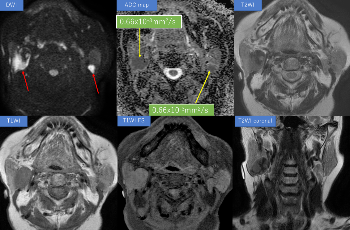 83-year-old parotid gland tumor FB up case
