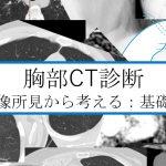 胸部 CTの教科書 基礎編