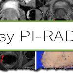 保護中: PI-RADS v.2.1 総論ビデオ 参加者限定
