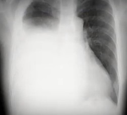 Lung9サムネ